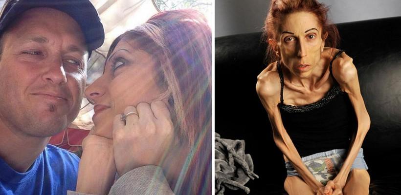 O actriță care suferă de anorexie are nevoie de sprijin și ajutor
