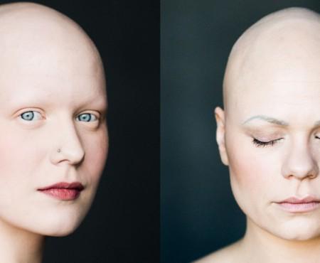 Boala ne impune să renunțăm la păr. Proiectul fotografic al Ellei Sigga