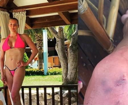 Anastasia Volochkova a fost mușcată de un animal marin! Iată ce a pățit la picior (Foto în articol)