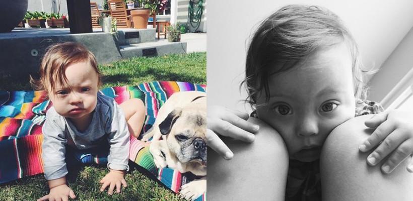 Un băiețel de 11 luni schimbă percepția lumii față de copiii cu sindromul Down