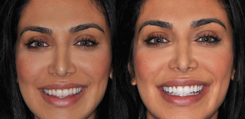Cum poți obține dinți mai albi în condiții de casă, în doar 3 minute (Foto și Video)