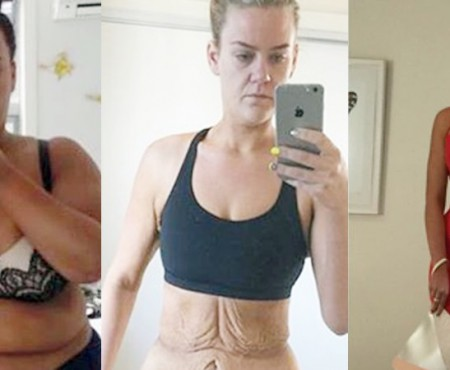 Tânăra care a slăbit 88 de kg în 11 luni și-a eliminat excesul de piele și arată fabulos