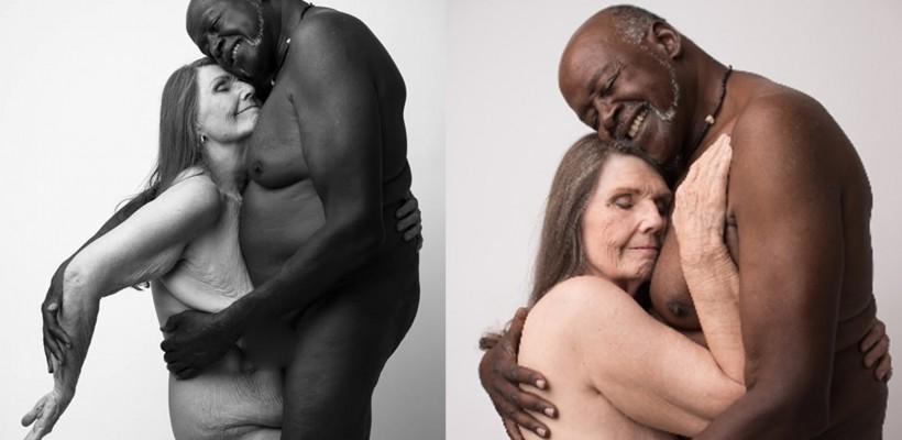 Cât 1000 de cuvinte! Pozele acestor soți ne vor schimba percepția despre perfecțiune și iubire