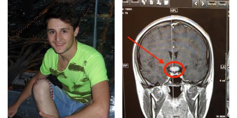 Un tânăr de doar 23 de ani, diagnosticat cu tumoare pe creier! Cere ajutorul oamenilor de bună credință