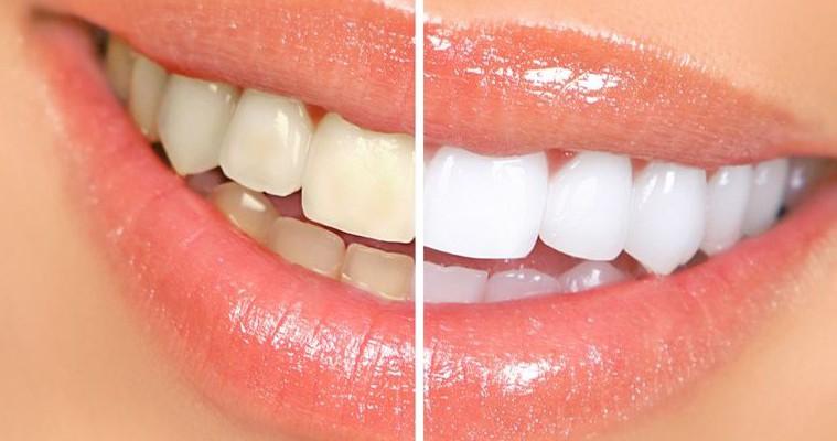 Înălbiți-vă dinții acasă. Aveți nevoie de lămâie și bicarbonat de sodiu