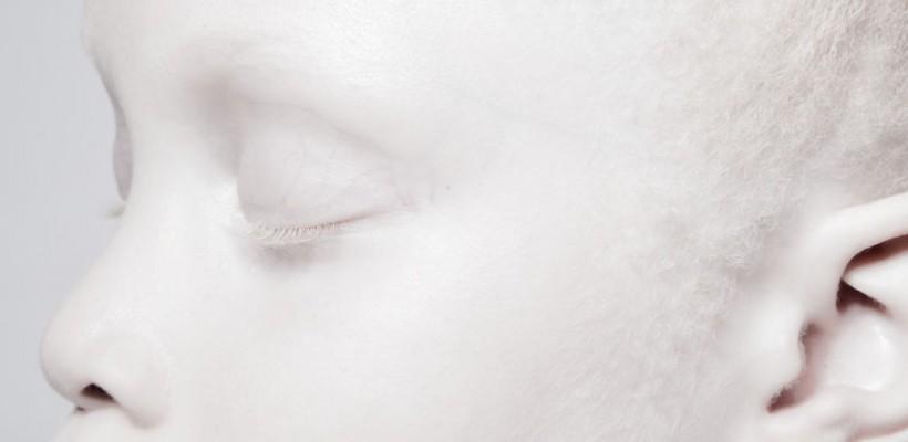 2 surori gemene nu au pic de culoare în păr, ochi sau pe piele. Afecțiunea le face modele bine cotate în industria fashion!