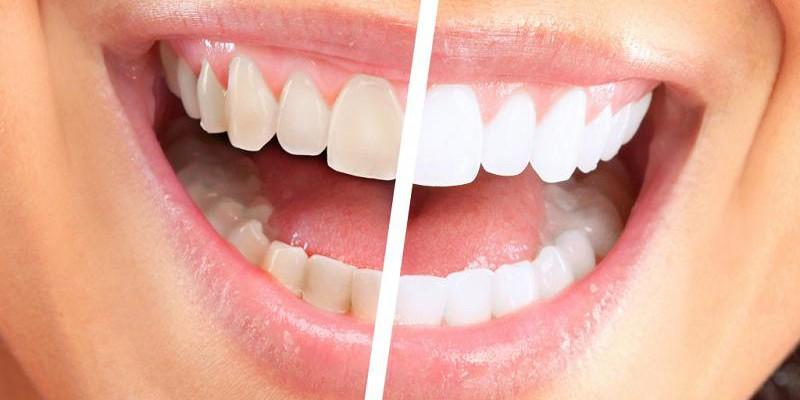 Vrei un zâmbet care să sclipească? Află de la specialist avantajele albirii dinților