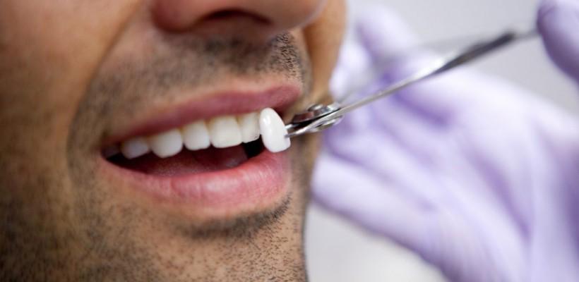 Vrei dinți de vedetă? Plăcerea costă și e cu angajament pe viață. Adevărul despre fațetele dentare!