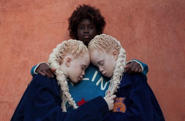 Două fetițe care suferă de albinism au cucerit industria modei! Sunt de o frumusețe rară
