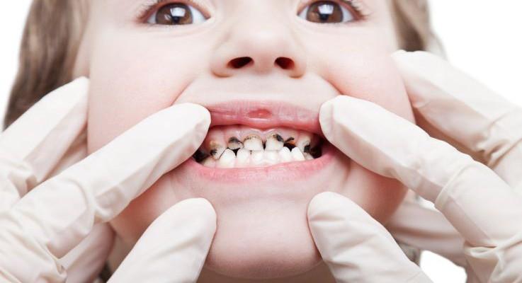 Cum prevenim caria dinților de lapte și când NU trebuie să scoatem primii dinți
