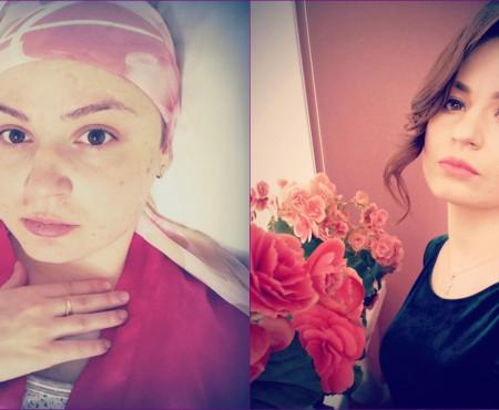 """""""Salut. Sunt Marina, am 24 de ani și vreau să trăiesc."""" Leucemia ei poate fi tratată"""