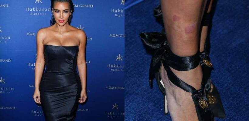 Are și ea defecte! Ce boală îi dă bătăi de cap lui Kim Kardashian